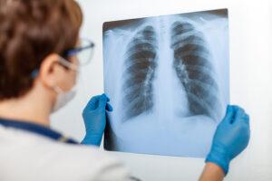 Pneumonia Treatment Laredo TX