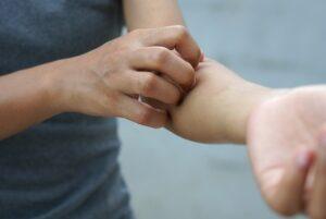 Skin Rash Treatment Laredo TX