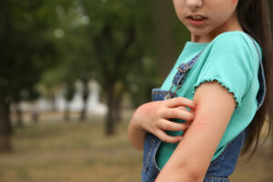 Young girl  in a park scratching an itchy insect sting on her arm